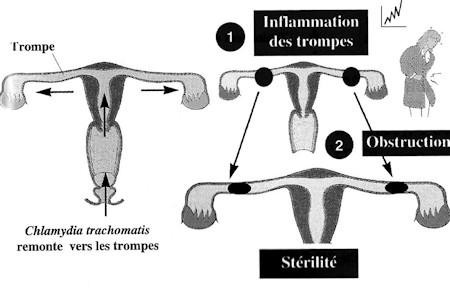 chlamidiose