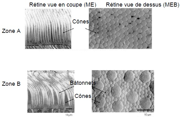 coupe_retine