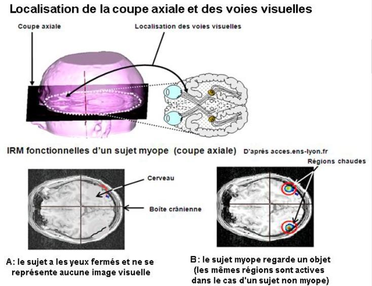 voies-visuelles