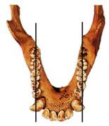 mandibule1