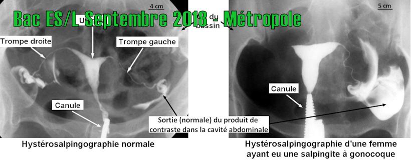 Bac ES/L Septembre 2018 – Métropole